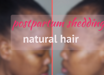 postpartum shedding natural hair