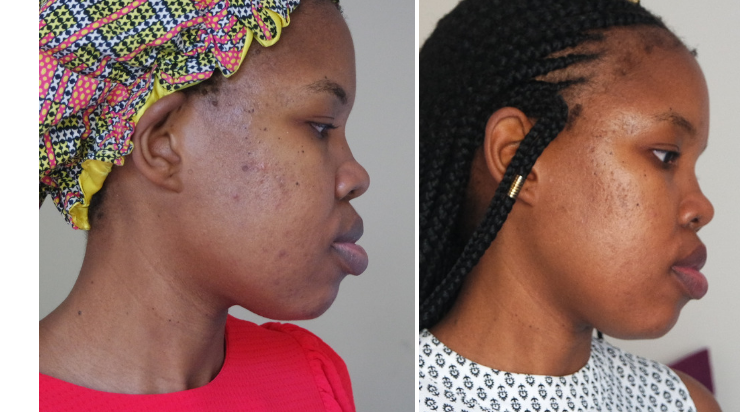 fading hyperpigmentation before and after
